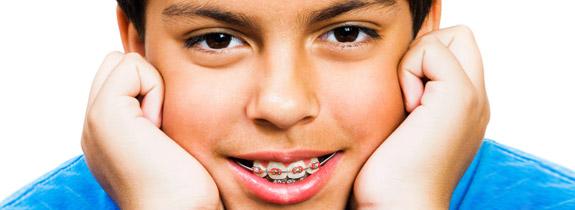 blog-clinica-prieto-ortodoncia
