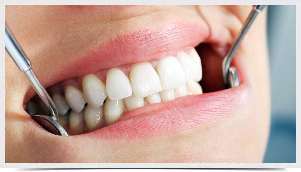 implantes-clinica-prieto-03