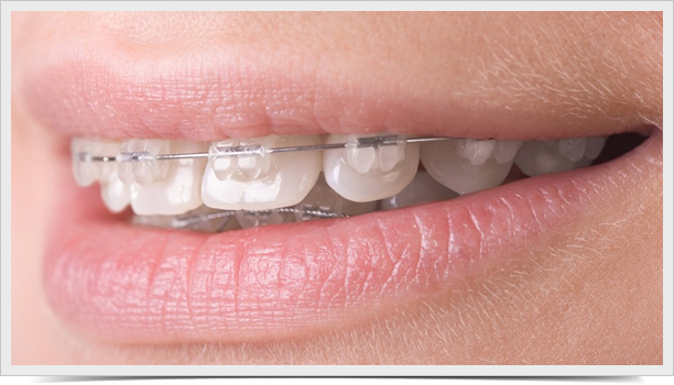 brackets-esteticos-01