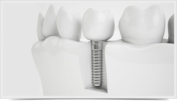 implantes-01